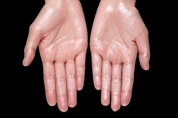 telapak tangan-berkeringat